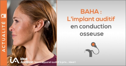 BAHA : L'implant auditif en conduction osseuse