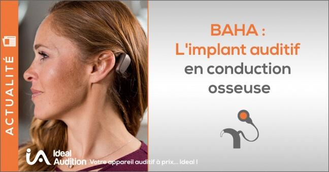 Implant auditif à conduction osseuse BAHA par COCHLEAR