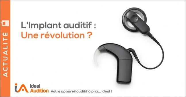 Implant Auditif Nouveautés