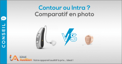 Appareil auditif contour ou intra ? Comparatif en photo